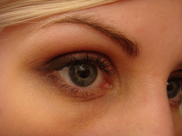 1000+ ideas about Drooping Eyelids on Pinterest