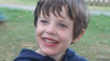 """El niño que sufre la rara enfermedad del """"cerebro mareado"""""""