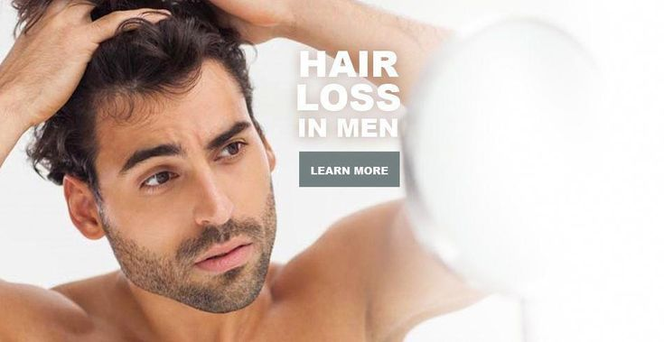 Facts causes hair loss male pattern baldness