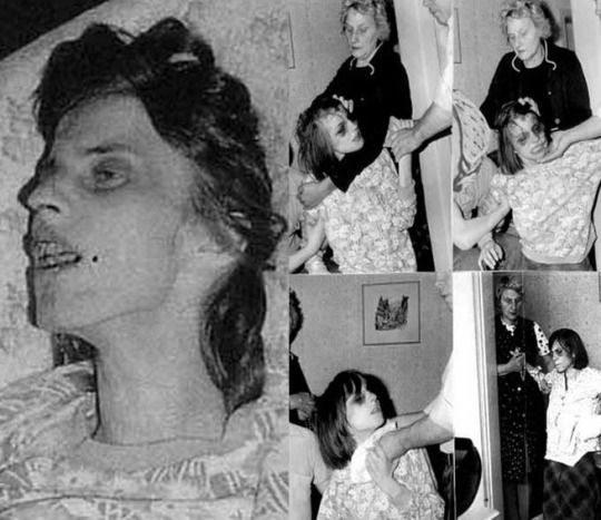 The  last photos of Anneliese Michel, the inspiration for Emily Rose.1970