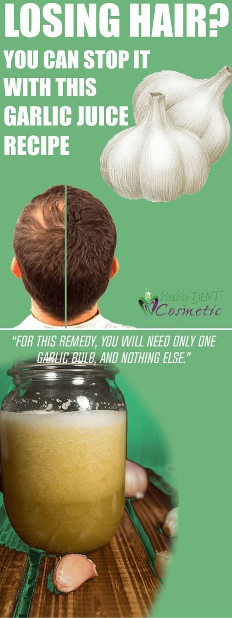 Losing Hair? You Can Stop It With This Garlic Juice Recipe! #whyamilosinghair #losinghair