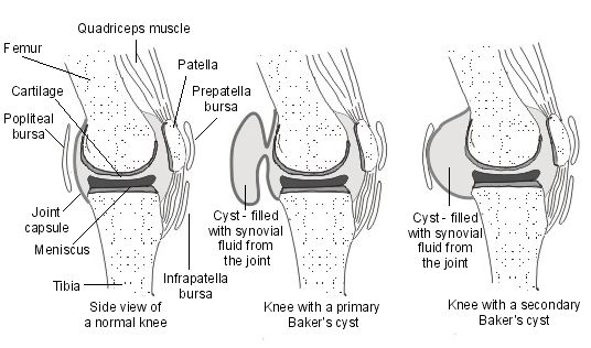 baker s cyst anatomy and physiology Understand the basic anatomy of the knee joint and correlate it to clinical pathology  baker's cyst  ↑ illustration from anatomy & physiology,.