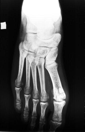 Radiografía del pie, frente | 2014 - Mod A - TP 5 ...