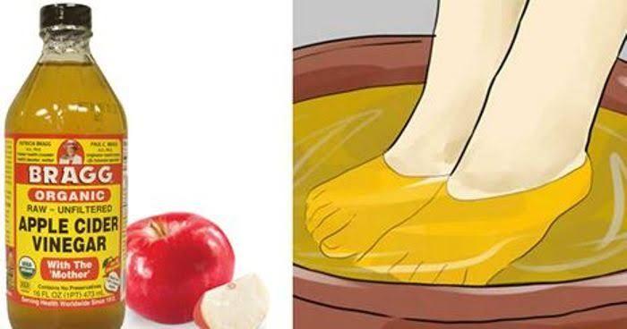 Le vinaigre de cidre de pomme est un produit naturel qui regorge de bienfaits pour votre santé et votre apparence. Découvrez ses multiples utilisations !