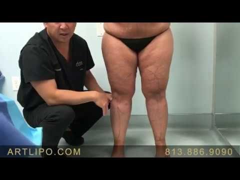 Ankles, Cankles, Calves, Knees, Legs-12| High-Definition Liposuction | E...