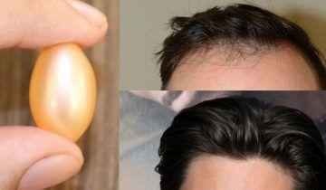 When it comes to hair, we all have some problems. Some of the most common hair problems are Hair fall Gray hair Dandruff Split ends No hair growth Today I am going to share one natural remedy that can solve almost all these problems and your hair will grow like never before For this remedy …