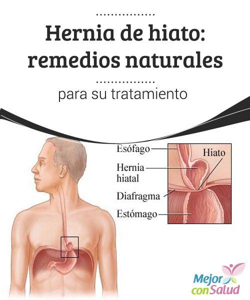 Hernia de hiato: remedios naturales para su tratamiento  El exceso de peso, así como el embarazo, son factores que pueden favorecer la aparición de la hernia de hiato, por lo que conviene vigilar la alimentación