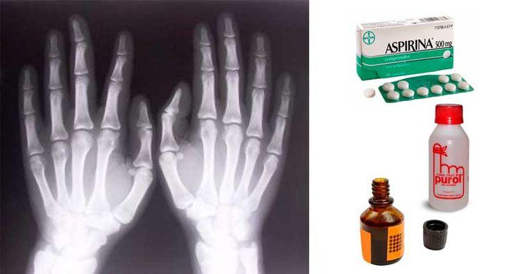 remedio-huesos