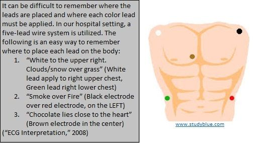 HEART MONITOR Electrode Placement