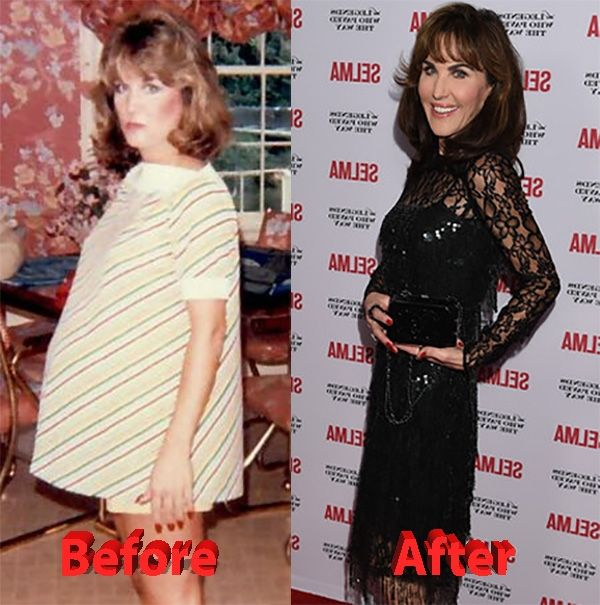 Dr Phils Wife Robin Mcgraw Celebrity Plastic Surgery Robin