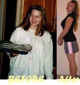 Before & After 100lb Weight loss