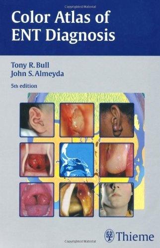 Color Atlas of ENT Diagnosis by Tony R. Bull, http://www.amazon.com/dp/3131293950/ref=cm_sw_r_pi_dp_GCWTrb0GA0KE6