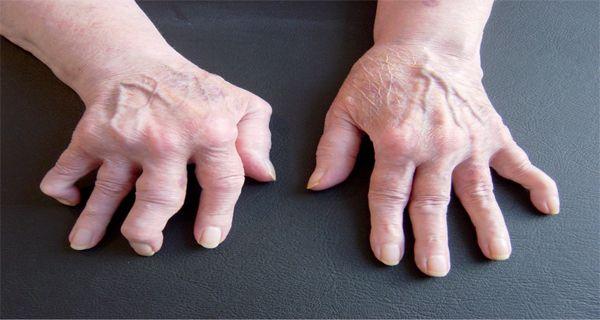 Cette femme a guéri son rhumatisme toute seule ! Découvrez comment !(RECETTE)