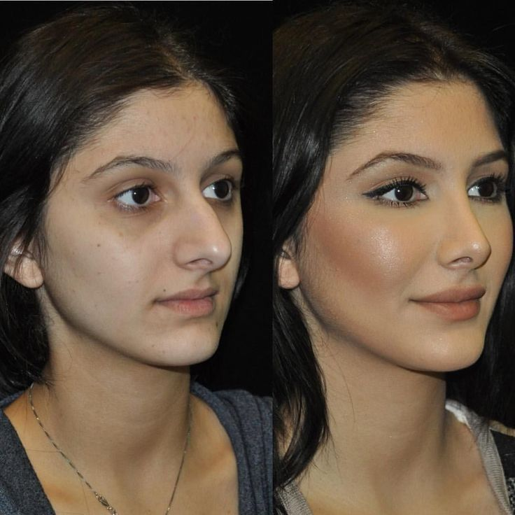 ・・・ One of our beautiful patients before and after #rhinoplasty and #fatgr…