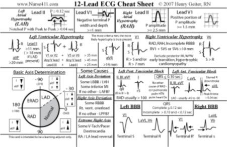 12 Lead EKG MI Interpretation mnemonics | Put mouse over Cheat Sheet card or T-shirt to see the back!