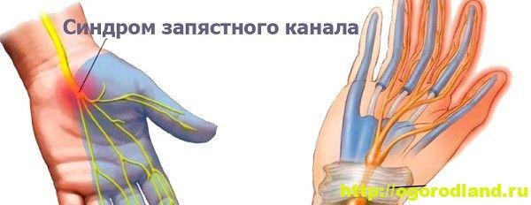 Синдром запястного канала