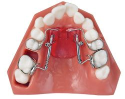 .:: American Orthodontics   Products   Fixed & Functional Jet ::.