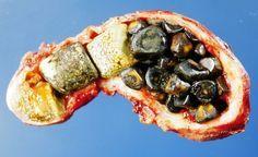 Čínský doktor prozradil tajemství, jak se jednoduše zbavit žlučníkových kamenů za 7 dní