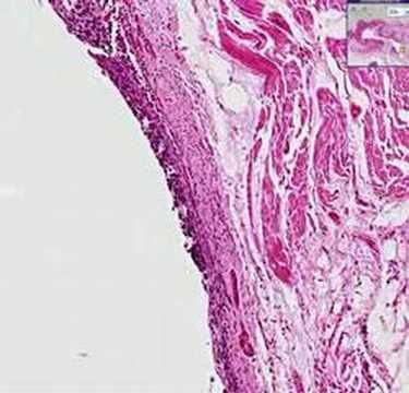 Squamous cell carcinoma of the lung , pathology