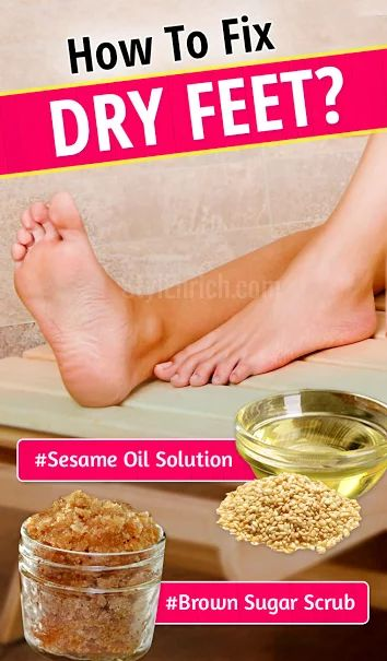 How to Fix Dry Feet : Home-Based Remedies To Cure Dry Feet