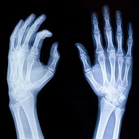 How Is a Rheumatoid Arthritis Diagnosis Made?