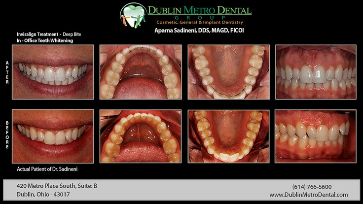 how to deep clean invisalign retainer