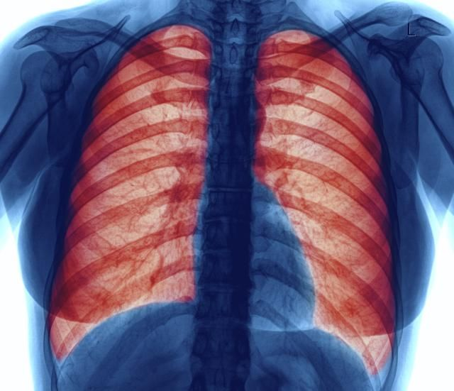 What does lung pain feel like, what are some of the causes, and what tests might your doctor order? When could this mean you may have lung cancer?