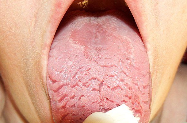"Does your tongue look like a map which changes in appearance after every few days or weeks? You may have geographic tongue. Also known as ""erythema migrans"" and ""benign migratory glossitis"", it's nothing serious — there is no evidence that geographic tongue is linked to bigger oral problems such as cancer. Geographic tongue is not …"