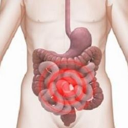 How To Treat Diabetic Gastroparesis