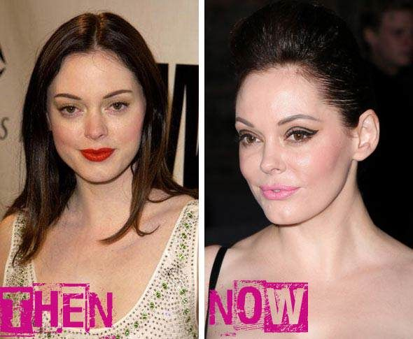 Red dress black tights celebrity plastic surgery