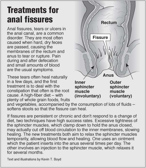 Anal fissure packed blood treatment