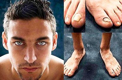 ARTÍCULO DIARIO MARCA: Los pies de los futbolistas