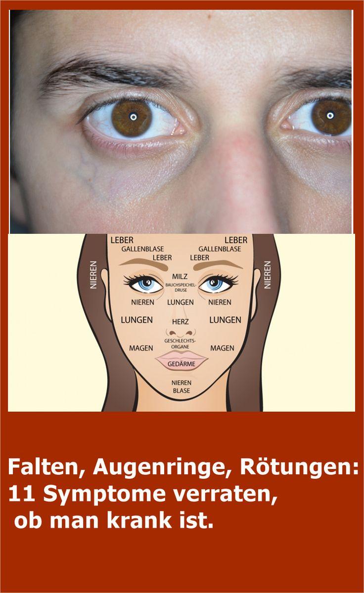 Falten, Augenringe, Rötungen: 11 Symptome verraten, ob man krank ist. | njuskam…