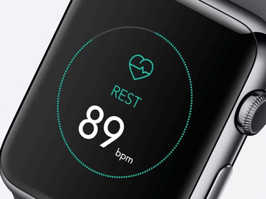 Apple Watch - DPS