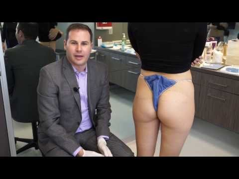 Non-surgical butt injections, fillers for your booty, are a growing trend in inj…
