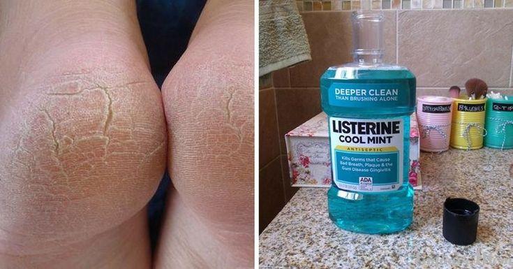 13 Εκπληκτικές Χρήσεις του Listerine που Σίγουρα δεν Γνωρίζατε. Την 7η θα την Λατρέψουν όλες οι Γυναίκες! - ViralMan