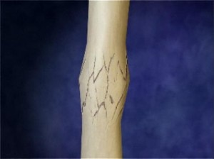 Lesser Known Facts About Bone Fractures And Calcium Metabolism