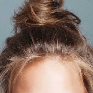 Tips For Curing Dry Scalp | Beauty | Purewow