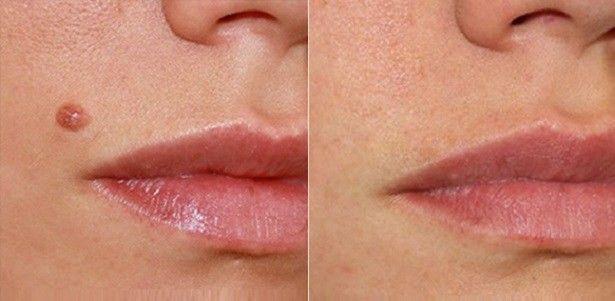 Elimina todas las verrugas, lunares, fibromas, espinillas y manchas de la edad.