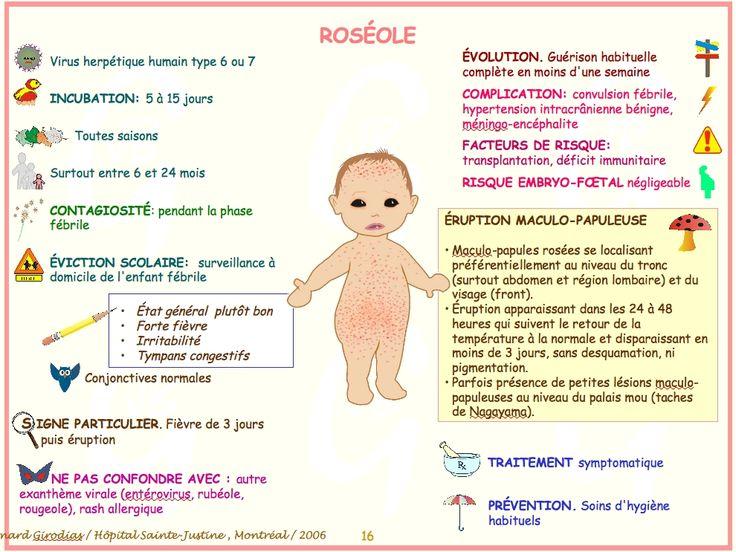 Roséole http://monblog75.blogspot.fr/2013/11/infos-sante-roseole.html