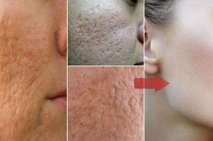 Use apenas 1 ingrediente para acabar com os poros abertos do seu rostos