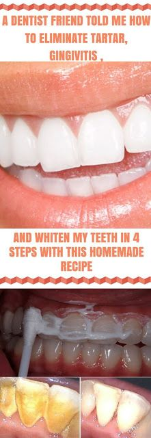 A DENTIST FRIEND TOLD ME HOW TO ELIMINATE TARTAR, GINGIVITIS AND WHITEN MY TEETH IN 4 STEPS WITH THIS HOMEMADE RECIPE