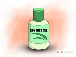 Get Rid of Poison Ivy Rashes Step 14.jpg