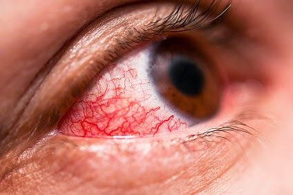 Home Remedies for Pink Eye Relief