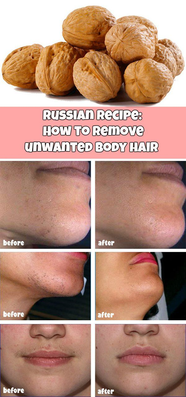 Russian recipe: How to remove unwanted body hair