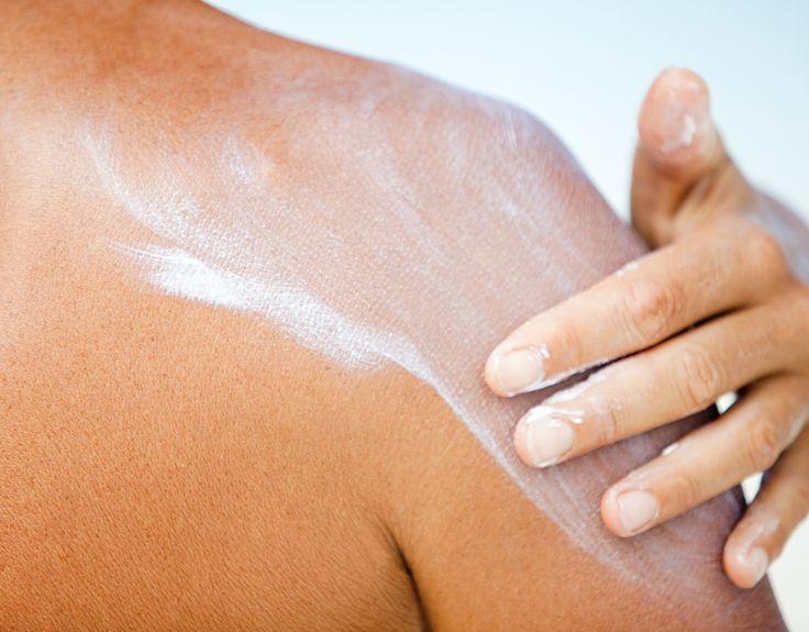 8 Miracle-Workers That Soothe Sunburn and Heal Peeling Skin