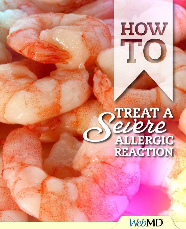 Best 25 shrimp allergy symptoms ideas on pinterest red for Fish allergy home remedy