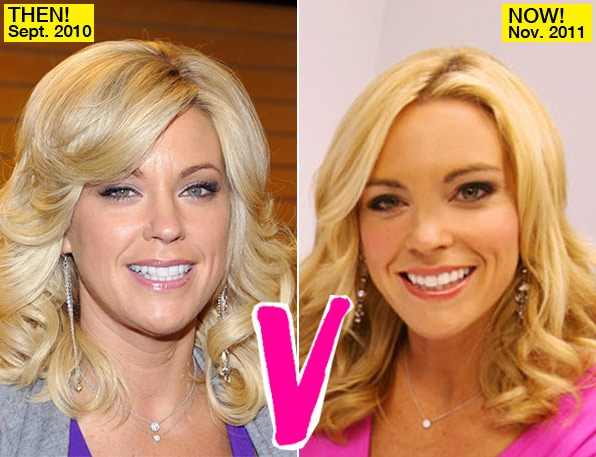 Kate Gosselin Lift?