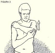 El músculo supraespinoso ayuda a abducir el brazo. Cualquier fricción entre el tendón y el acromion normalmente es reducido por la bursa subacromial - situada entre el tendón supraespinoso y el acromion-. A veces con el uso y desgaste, la tendinitis del supraespinoso se asocia con la inflamación de la bursa subacromial dando lugar a una bursitis. Incluso puede haber alguna rotura parcial y a veces completa del tendón.