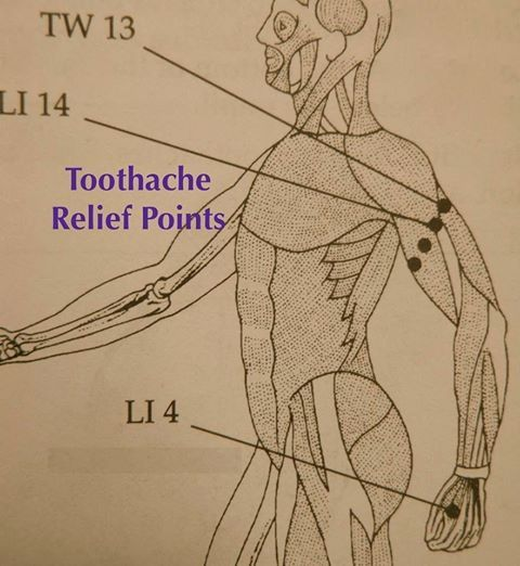 does acupuncture relieve chronic pain? essay Results from a number of studies suggest that acupuncture may help ease types of pain that are often chronic such as low-back pain, neck pain, and osteoarthritis/knee pain it also may help reduce the frequency of tension headaches and prevent migraine headaches.